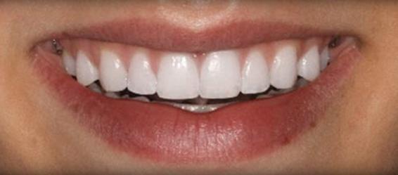 Orthodontics 1 After
