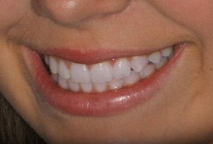 Orthodontics 2 After