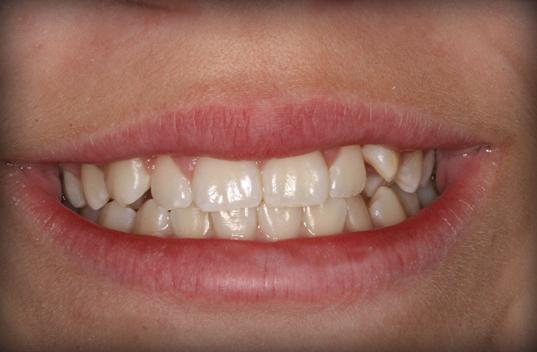 Orthodontics 2 Before